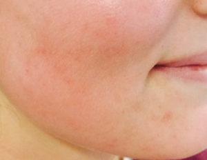 laserbehandling hud rødme