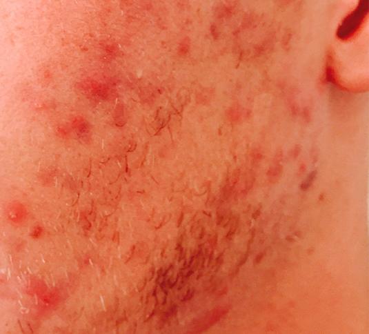 Akne behandling før efter